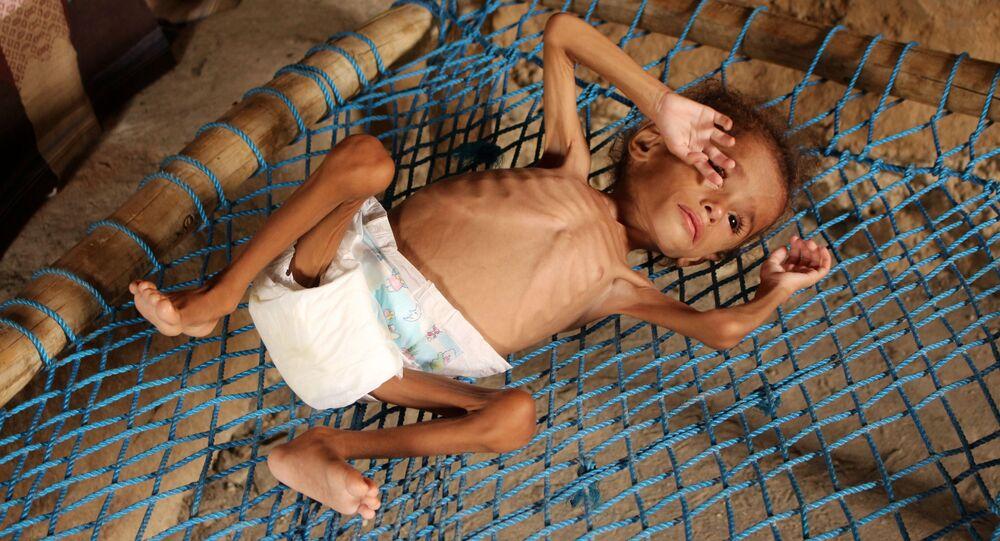 Yemen'de açlık ve yetersiz beslenme