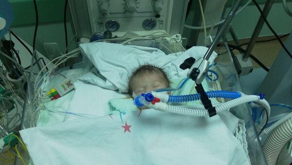 12 günlük bebeğe yapay damar - Sputnik Türkiye