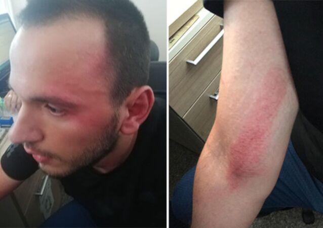 Özel harekat polislerinden doktora şiddet iddiası