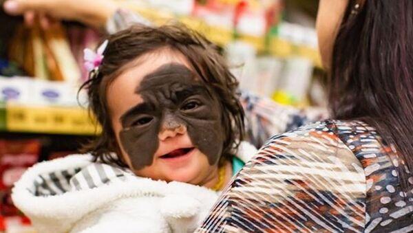 Batman maskesini andıran bir doğum lekesine sahip minik kızın tedavisi Rusya'da başladı - Sputnik Türkiye