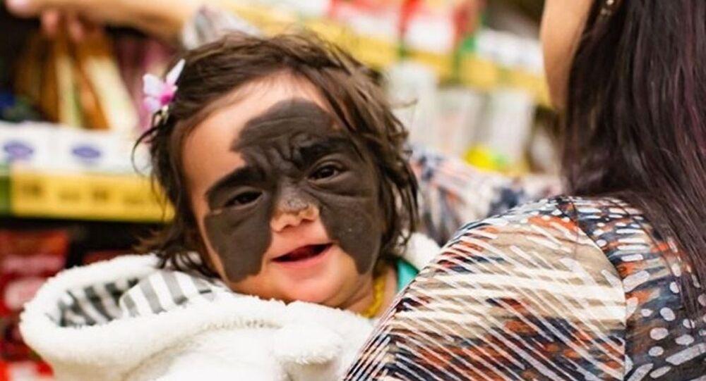 Batman maskesini andıran bir doğum lekesine sahip minik kızın tedavisi Rusya'da başladı