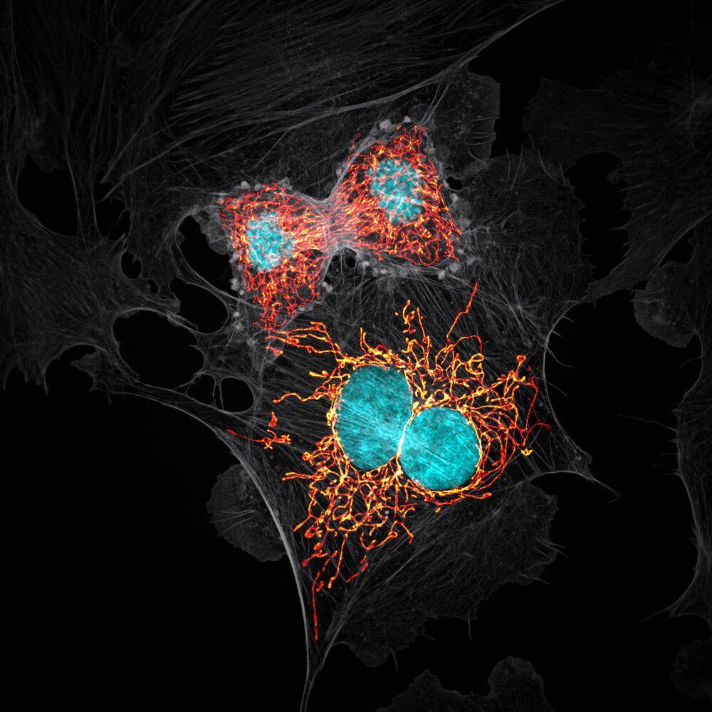 Yarışmada 10. sıraya yerleşen ABD'li fotoğrafçı Jason M. Kirk'in hücrelerin bölünme sürecinin son aşamasını görüntülediği bir çalışma