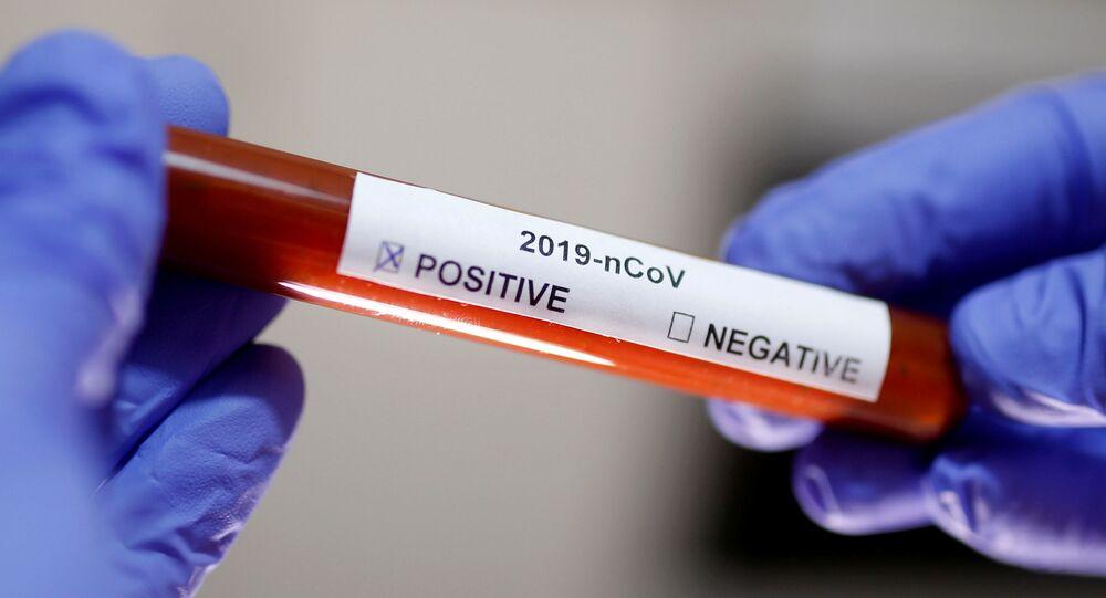 Koronavirüs pozitif yazılı test tübü