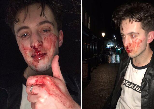 Bandicoot'un solisti ve gitaristiRhys Underdown, Galli olduğu gerekçesiyle  İngiltere'yi terk et diye taciz edildi ve dövüldü.