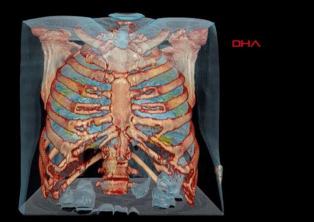 ABD'de bulunan George Washington Üniversitesi Hastanesi'ndeki doktorlar, koronavirüs (Covid-19) hastasının akciğerlerini 360 derece sanal gerçeklik teknolojisi kullanarak görüntüledi.
