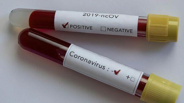 Koronavirüs pozitif - negatif - Sputnik Türkiye