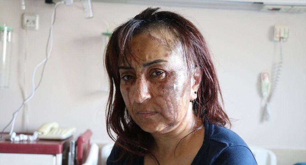 Boşanma davası açtığı eşinin kezzaplı saldırısına uğradı