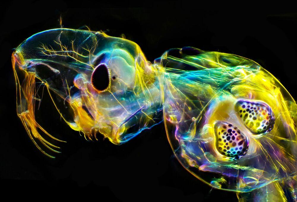2020 Bilim Fotoğrafları Yarışmasının Makro Görüntüler' kategorisinin birincisi Andrey Savitskiy'nin 'Sivrisinek larvası' görüntüsü